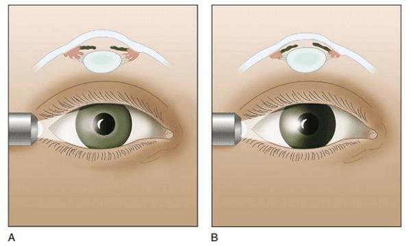 Ánh sáng không đi qua được bên mống mắt đối diện ở bệnh nhân gợi ý cườm ướt cấp (Hình B)