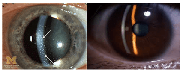 Các tế bào bất thường ở tiền phòng - trước mống mắt (trái). Tiền phòng bình thường (phải)