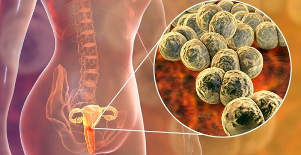 Các tác nhân lây truyền qua đường tình dục như lậu cầu có thể gây viêm vùng chậu