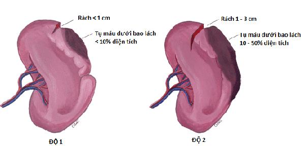 Hình ảnh phân loại mức độ vỡ lách
