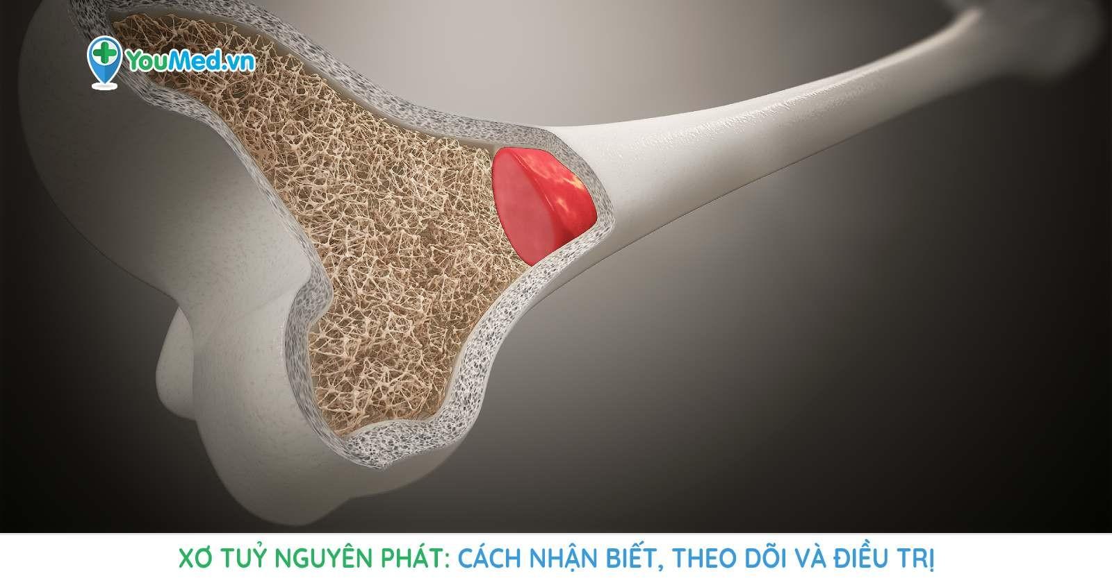 xo-tuy-nguyen-phat-cach-nhan-biet-theo-doi-va-dieu-tri