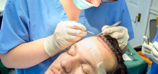 điều trị rụng tóc cấy tóc