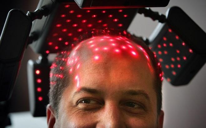 điều trị rụng tóc bằng laser