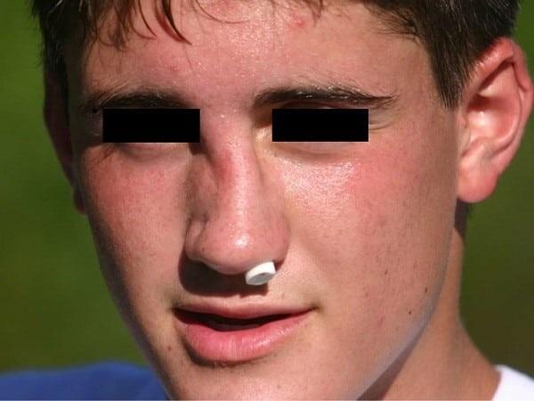 Sưng nề và biến dạng sau một chấn thương vào vùng mũi.