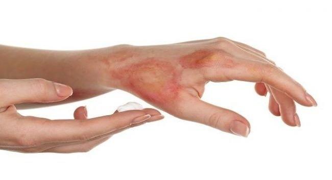 Những tác dụng phụ khi dùng Hydrogen Peroxide bạn nên biết