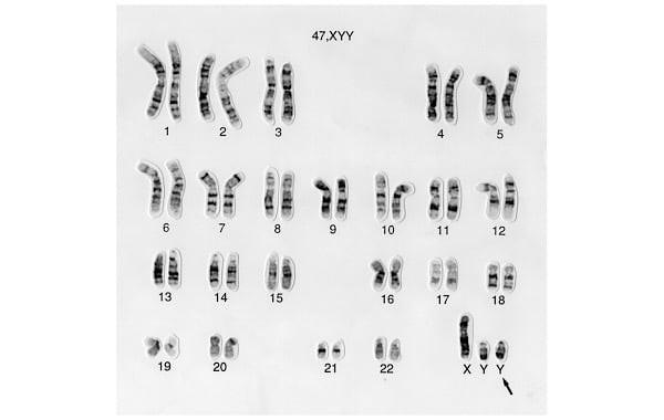 Hội chứng siêu nam xảy ra khi người nam có thêm một nhiễm sắc thể Y