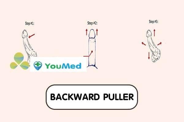Bài tập Backward Puller