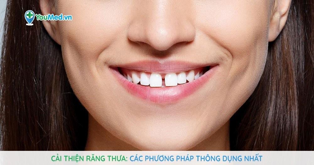 Cải thiện răng thưa - Các phương pháp thông dụng nhất