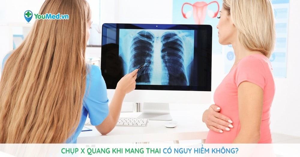 Chụp X quang khi mang thai có nguy hiểm không