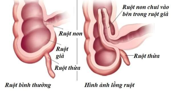 Hình ảnh mô tả trực quan bệnh lý lồng ruột