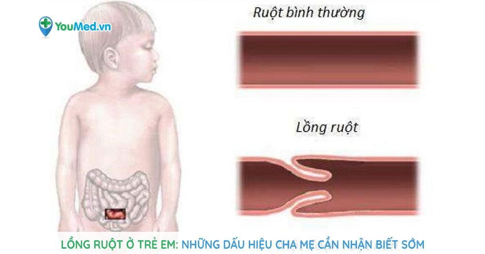 Lồng ruột ở trẻ em: Những dấu hiệu cha mẹ cần nhận biết sớm