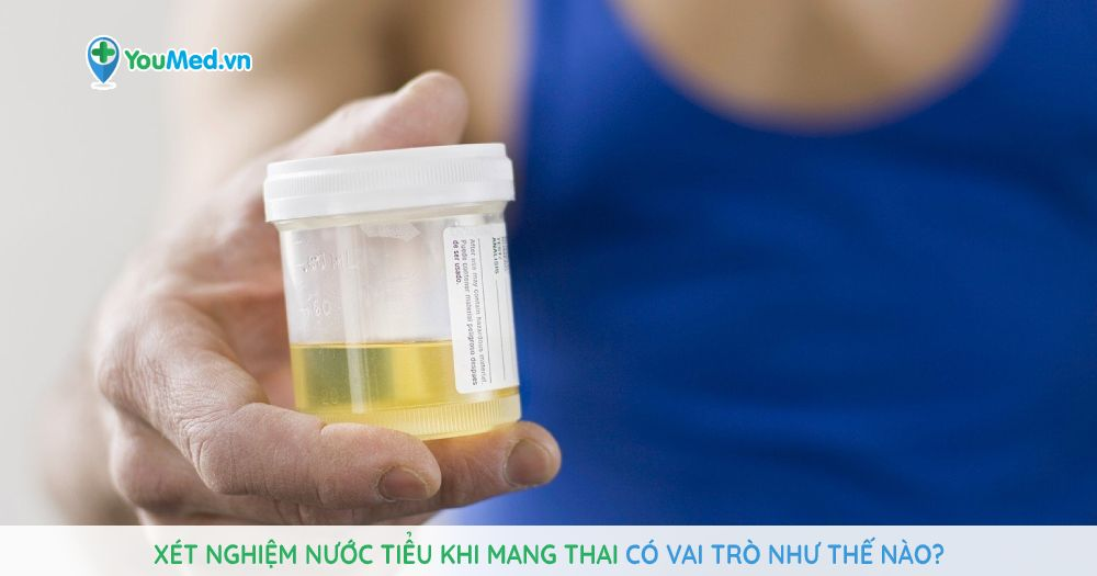 xet-nghiem-nuoc-tieu-khi-mang-thai-co-vai-tro-nhu-the-nao