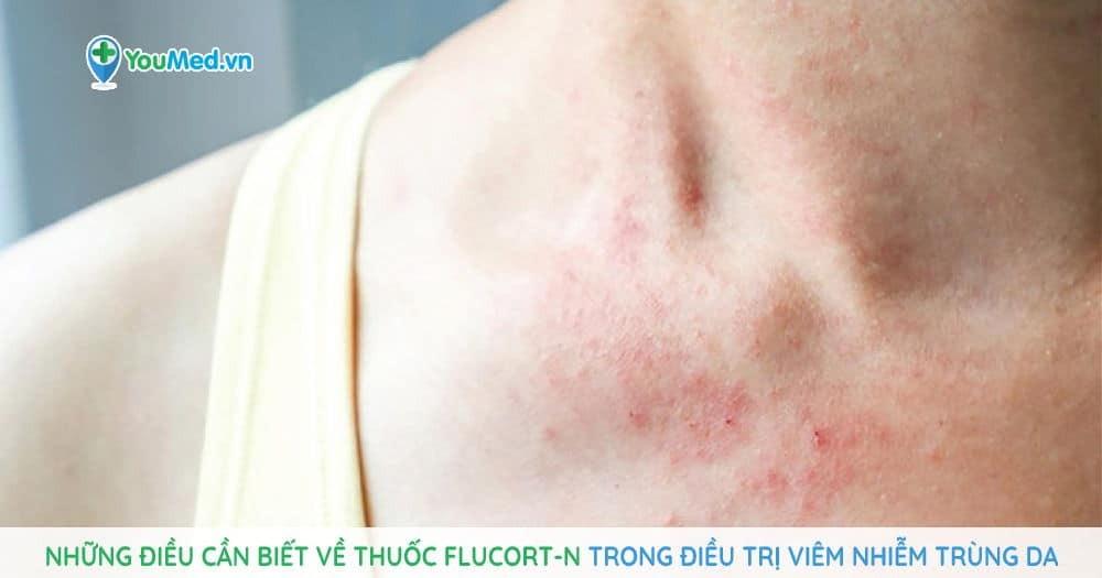 Những điều cần biết về thuốc Flucort-N trong điều trị viêm nhiễm trùng da