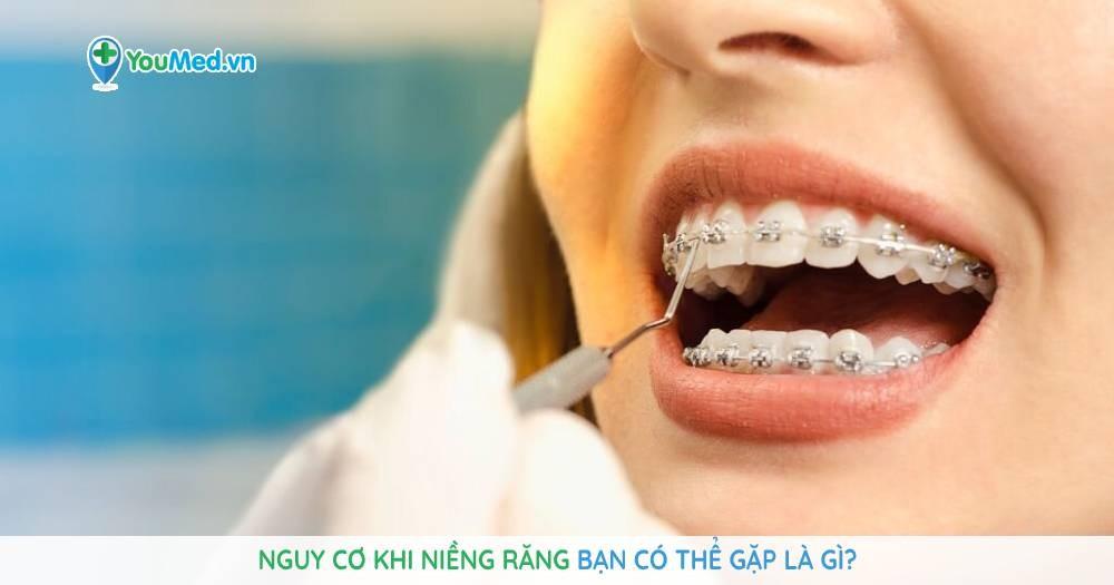 Nguy cơ khi niềng răng bạn có thể gặp là gì