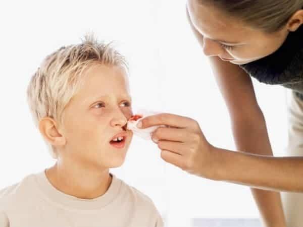 Sơ cứu chảy máu cam ở trẻ em