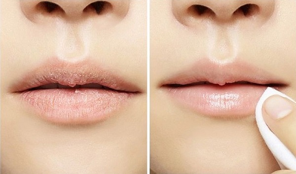 Tẩy da chết cho môi