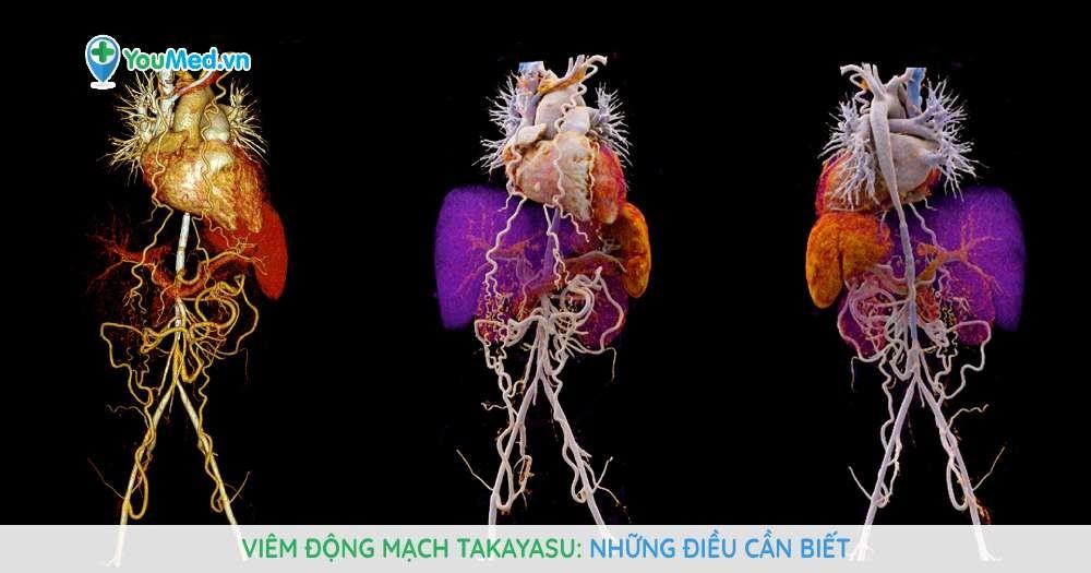 Viêm động mạch Takayasu: Những điều cần biết