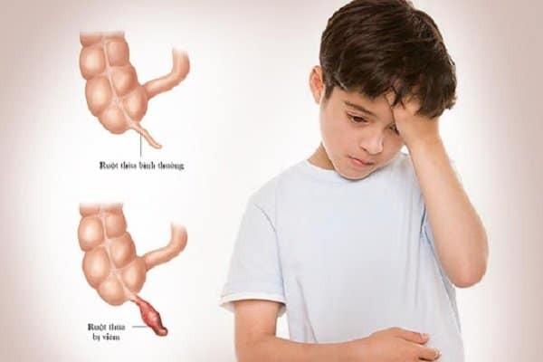 Viêm ruột thừa ở trẻ em