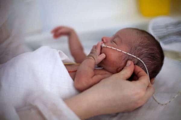 bé sinh non có nguy cơ suy hô hấp do xẹp phổi