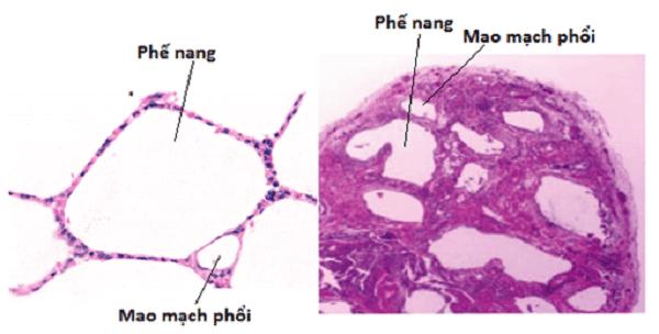 Hình trên kính hiển vi của phổi bình thường (trái) và phổi xơ hoá (phải)