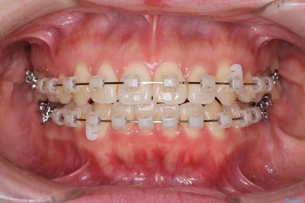 Có thể cải thiện răng thưa bằng niềng răng