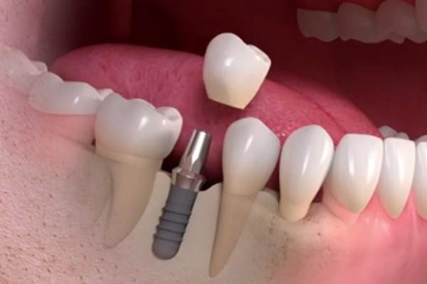 Phương pháp implant