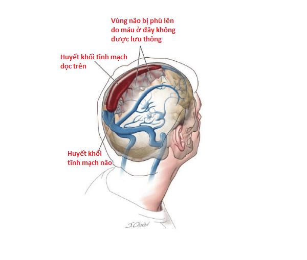 Huyết khối ở xoang tĩnh mạch dọc trên và trong tĩnh mạch não.
