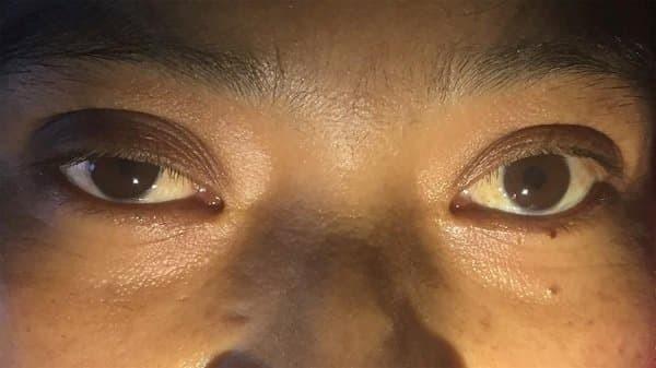 Co đồng tử (tròng đen) kèm sụp mi bên mắt phải của bệnh nhân trong hội chứng Horner