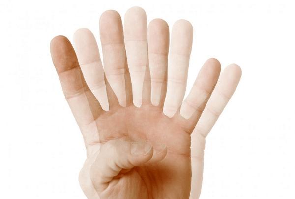 Biểu hiện khi bệnh nhân có nhìn đôi