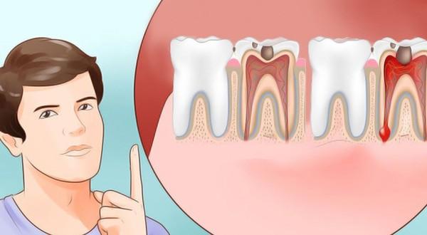 Răng đau nhức khiến bạn khó chịu