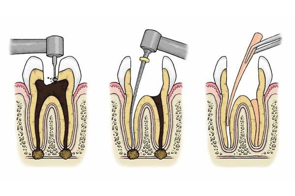 Điều trị do sâu răng