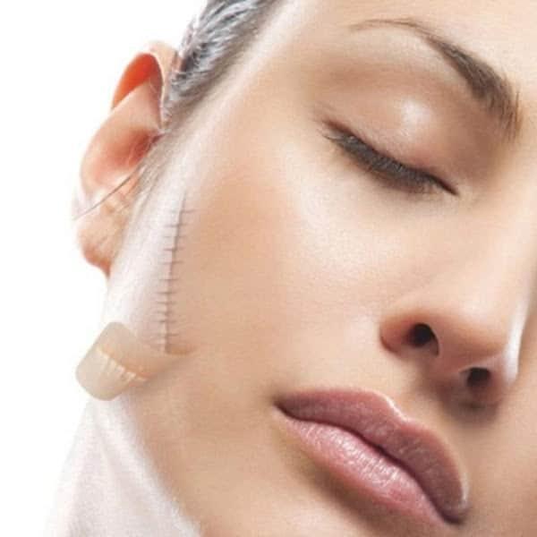 Hướng dẫn cách sử dụng và liều dùng kem trị sẹo Dermatix Ultra