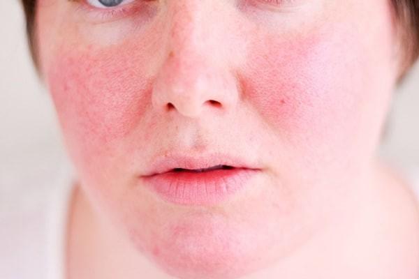 Sản phẩm có thể gây ra một số kích ứng trên da