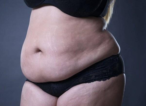 Sau sinh, việc áp dụng những phương pháp giảm vòng eo cần hợp lí và khoa học