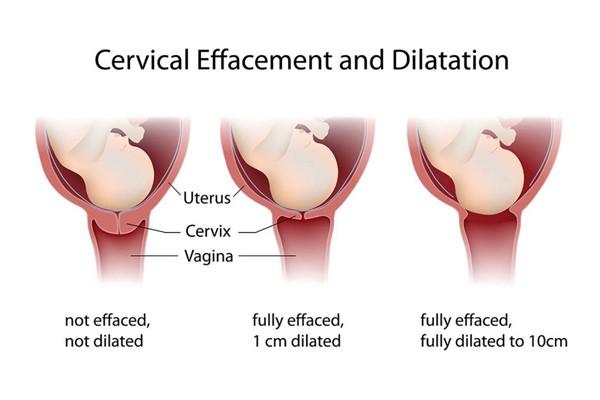 Sự thay đổi của tử cung