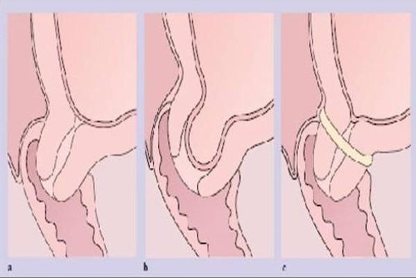 Khâu cổ tử cung khi mang thai