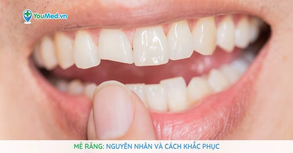 mẻ răng nguyên nhân và cách khắc phục