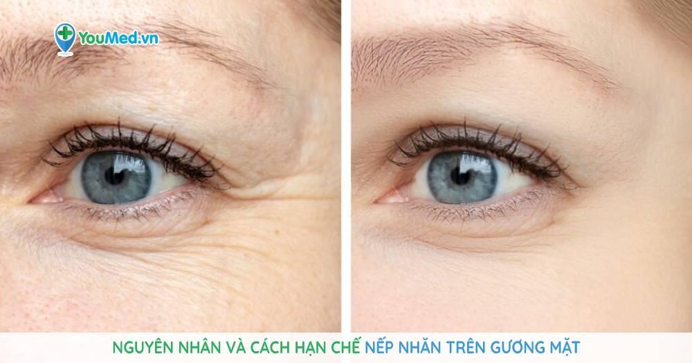 Nguyên nhân và cách hạn chế nếp nhăn trên gương mặt