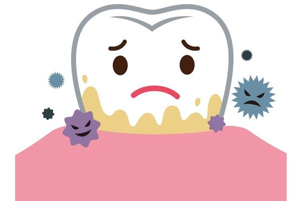 Ăn các thực phẩm nhiều đường làm gia tăng sự xuất hiện của vi khuẩn trong mảng bám