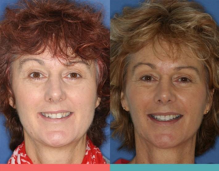 niềng răng thay đổi khuôn mặt