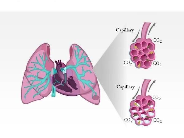 Phù phổi cấp