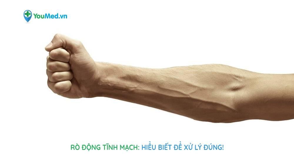 Rò động tĩnh mạch: Hiểu biết để xử lý đúng!