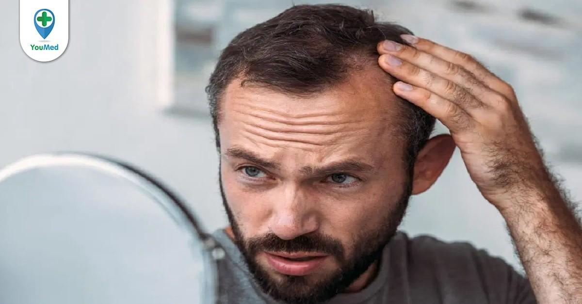 rung tóc ở nam giới