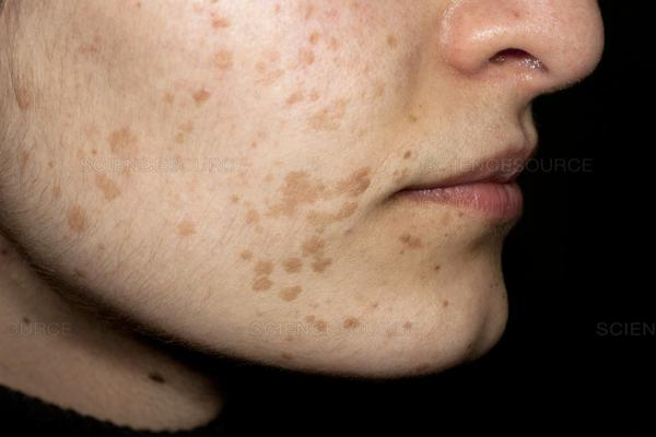 Mụn cóc phẳng ở da mặt.