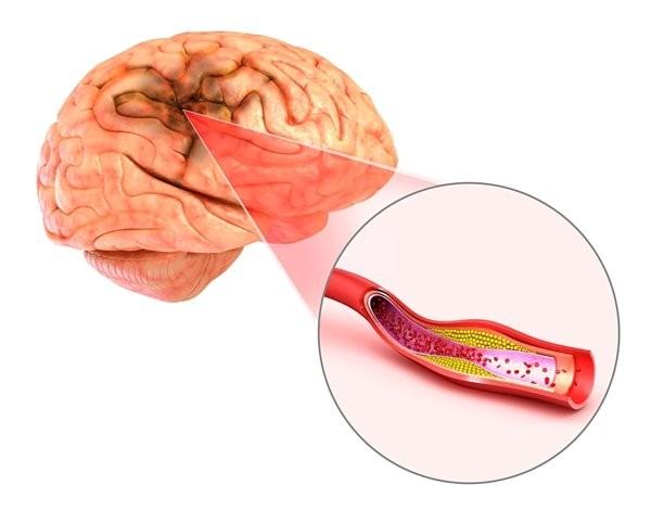 thiếu máu não là một trong những biến chứng nguy hiểm của viêm động mạch Takayasu