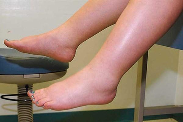 Phù nề là một trong những tác dụng phụ của thuốc Dexamethasone