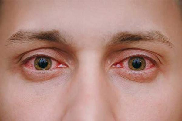 Tình trạng xung huyết là tác dụng phụ có thể xảy ra