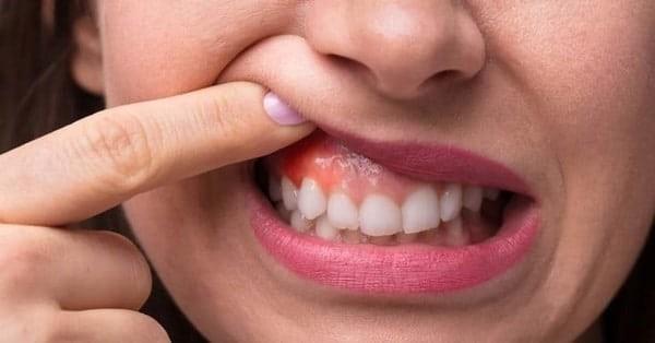 Thuốc Rodogyl dùng trong điều trị áp xe răng
