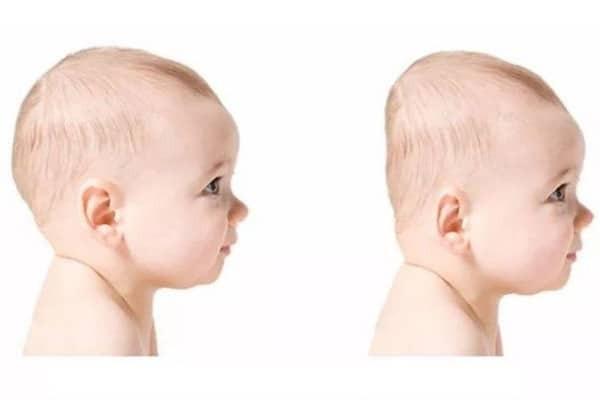 Đầu phẳng của trẻ sẽ tự hồi phục