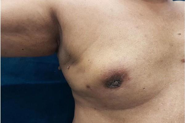 Khối u ở vú thường xuất hiện ở dưới hoặc xung quanh núm ở một bên vú